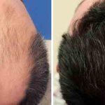 کلینیک کاشت مو اقساطی در کرج و تهران زنده و قابل رشد به روش sut زیر نظر پزشک متخصص پوست و مو با 15 سال سابقه و هزینه مناسب ، کاشت تخصصی خانم ها و آقایان ، کاشت مو در فردیس کرج ،کاشت مو در عظیمیه کرج ،کاشت مو در گوهردشت کرج ،کاشت مو در مهرشهر کرج ،کاشت مو طالقانی کرج