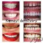 تخفیف استثنایی دندان پزشکی کمیل