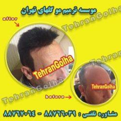 خدمات رایگان ترمیم مو در کلینیک ترمیم مو گلهای تهران